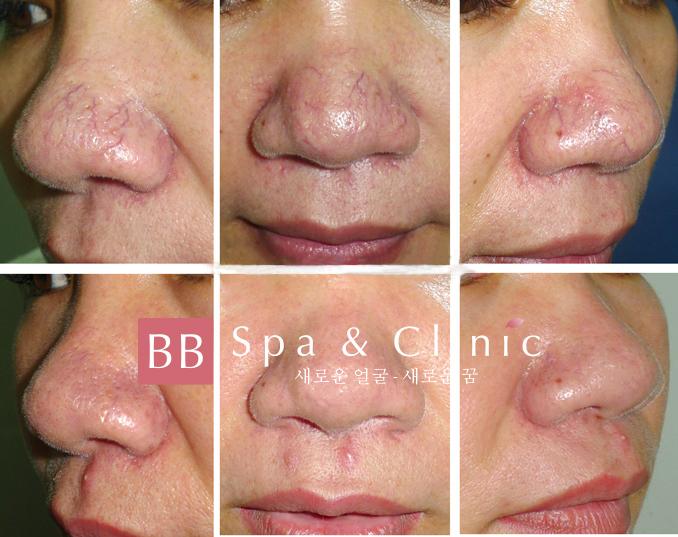 Điều trị giãn mao mạch mũi ở Thẩm mỹ BB