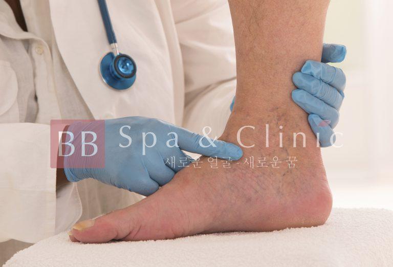 Công nghệ y khoa điều trị giãn mao mạch