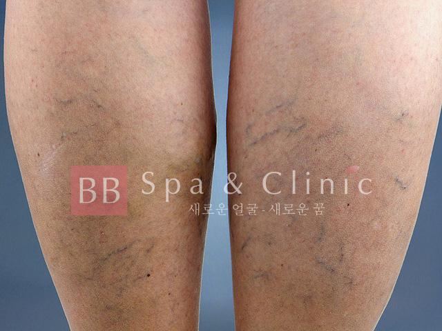 Điều trị giãn mao mạch bắp chân tại Thẩm mỹ BB
