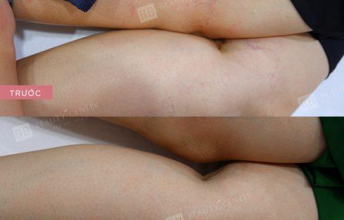 kết quả trị giãn mao mạch đùi và bắp chân