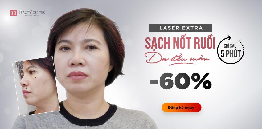 Tẩy nốt ruồi công nghệ Laser Extra