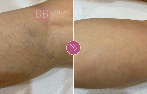 Kết quả trị giãn mao mạch vùng bắp chân tại Thẩm mỹ Quốc tế BB