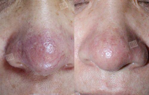 điều trị giãn mao mạch vùng mũi