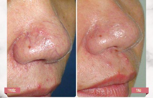 Kết quả trị giãn mao mạch vùng mũi tại Thẩm mỹ Quốc tế BB
